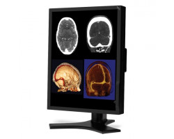 """Демо Монитор 21.3"""", 2МП NEC MD212MC, медицинский, цветной LCD высокой яркости"""